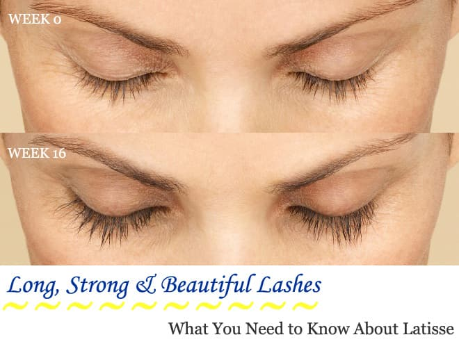 The Truth Behind Long, Strong Lashes: What You Need to Know About Latisse