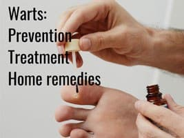 Warts: Prevention, Treatment and Home Remedies